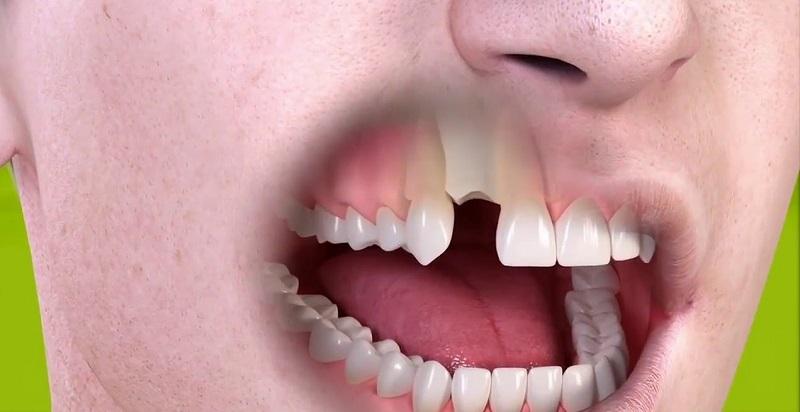 Mất răng là một trong những ảnh hưởng nghiêm trọng do ép xe gây ra