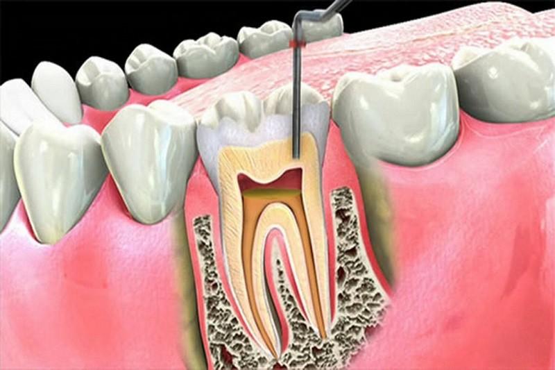 Điều trị tủy răng để loại bỏ vi khuẩn