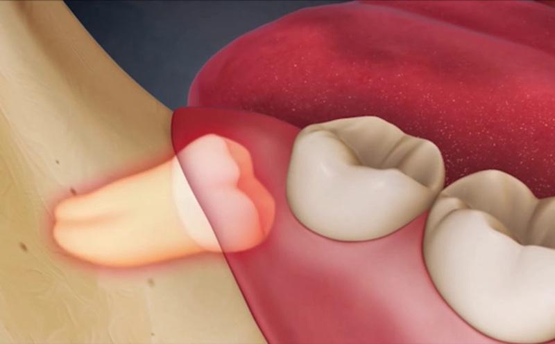 Áp xe răng khôn là chứng bệnh xuất phát từ tình trạng răng bị nhiễm trùng
