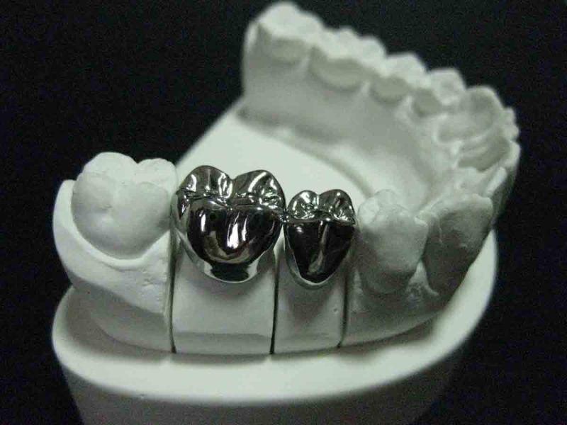Bọc răng bạc là một loại hình thẩm mỹ răng