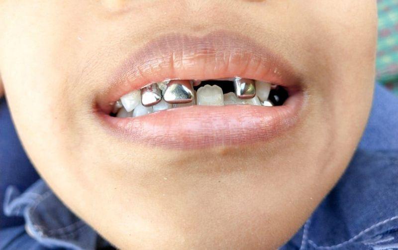 Chi phí thực hiện làm răng bạc sẽ phụ thuộc vào nhiều yếu tố