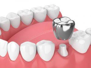 bọc răng bạc