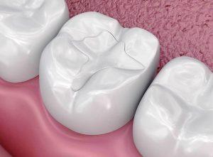 Bọc răng composite
