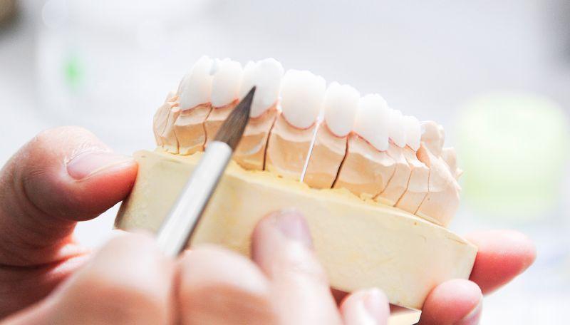Có nhiều loại răng sứ cercon khác nhau tùy theo nhu cầu của mọi người