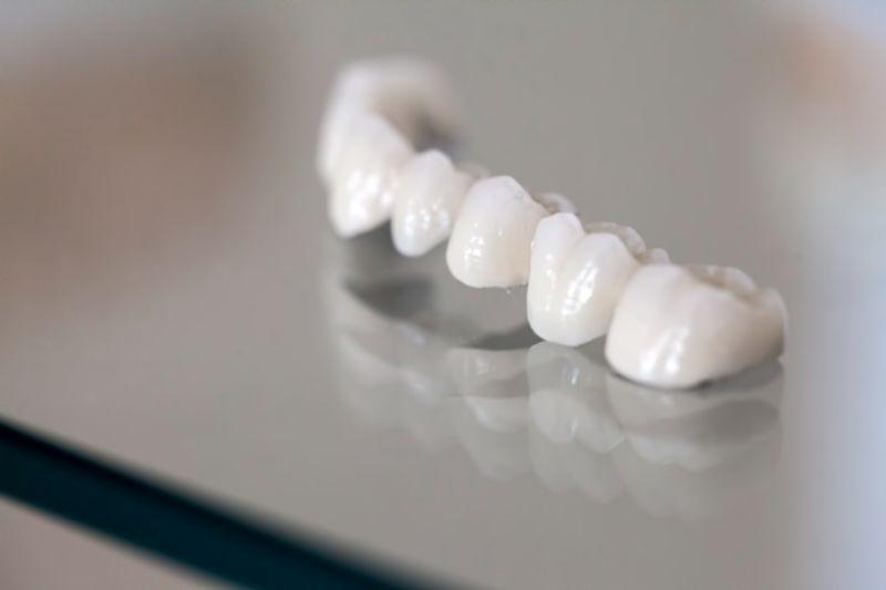 Đây là loại răng hiện đang là sự lựa chọn của rất nhiều người