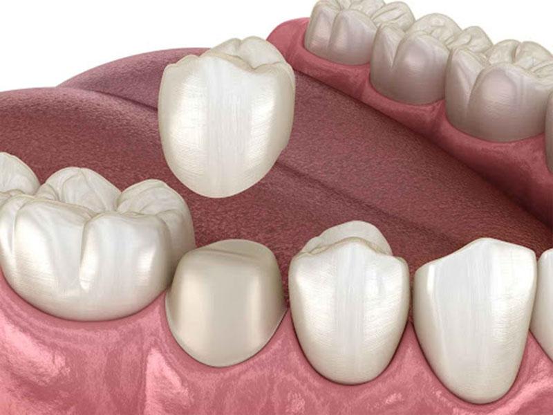 Đối tượng nên bọc răng gồm những ai bị mẻ răng, sứt răng,...