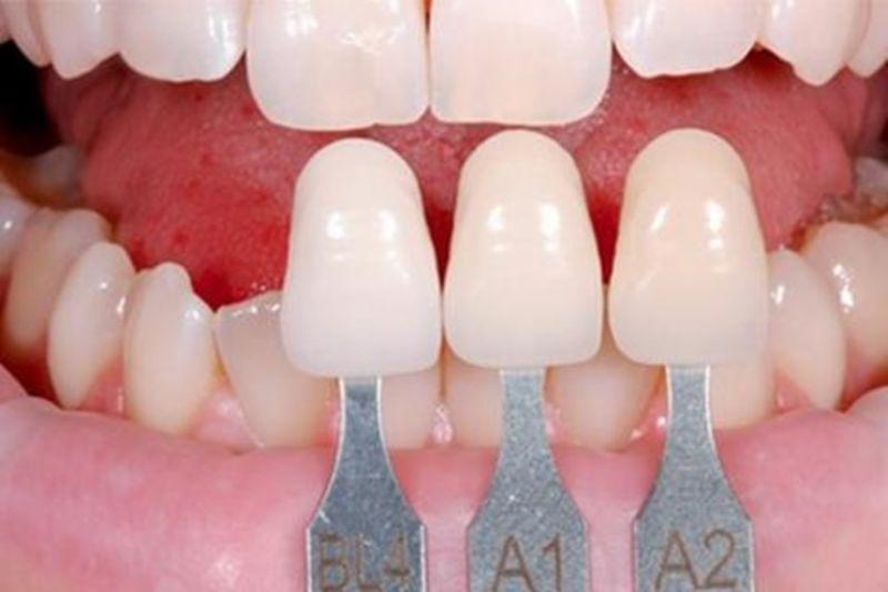 Tùy tình trạng hô mà nên bọc răng sứ cho phù hợp