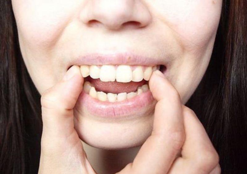 Một số trường hợp nên bọc răng khi răng có dấu hiệu bị hô