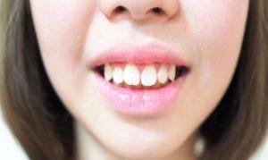 bọc răng sứ cho răng hô