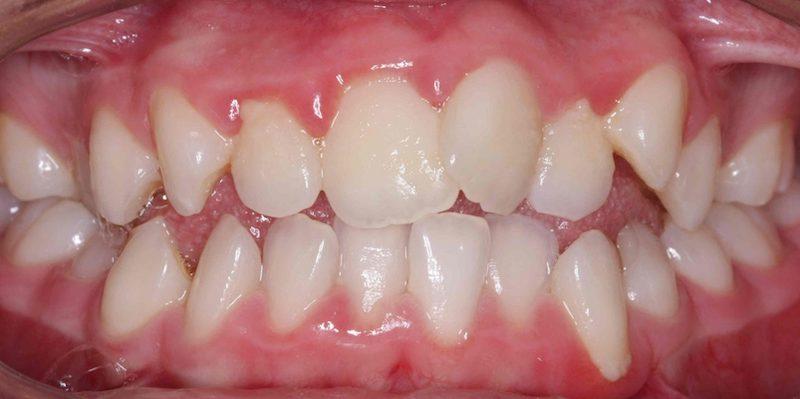 Tình trạng răng mọc lệch lạc, lộn xộn gây mất thẩm mỹ cho hàm răng