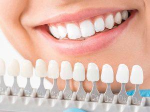 Bọc Răng Sứ Cho Răng Mọc Lệch Và Những Thông Tin Quan Trọng