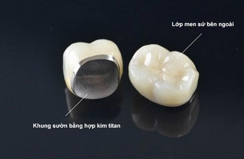 Răng sứ kim loại khiến viền nướu bị đen và dễ gây kích ứng.