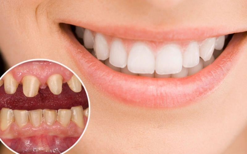 Bọc răng sứ giúp khắc phục đa số các khuyết điểm nhẹ đến vừa phải của hàm răng tự nhiên