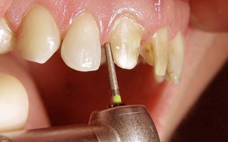 Có rất nhiều lý do từ chủ quan đến khách quan khiến việc bọc răng sứ bị đau