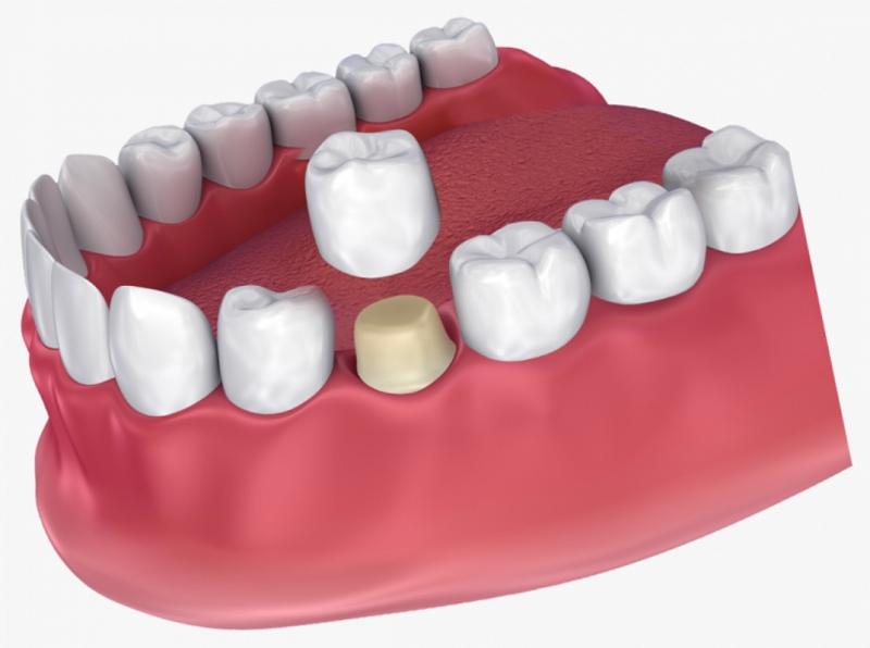 Bọc răng sứ nguyên hàm là giải pháp nha khoa thẩm mỹ phổ biến