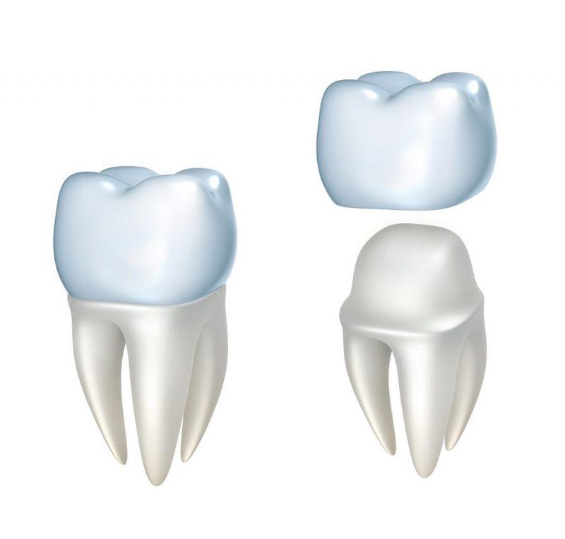 Bọc răng sứ là hình thức dùng răng giả để phủ ra bên ngoài răng thật bị hư hại