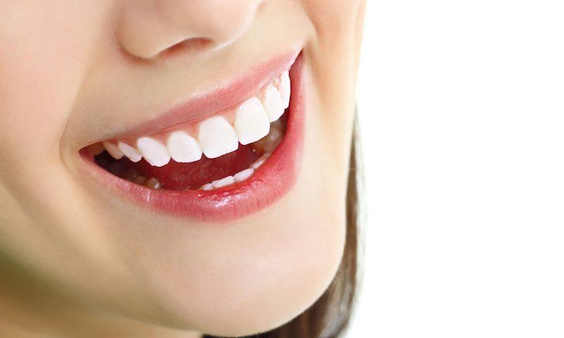 Bọc răng sứ mang lại nụ cười tự tin, trắng sáng