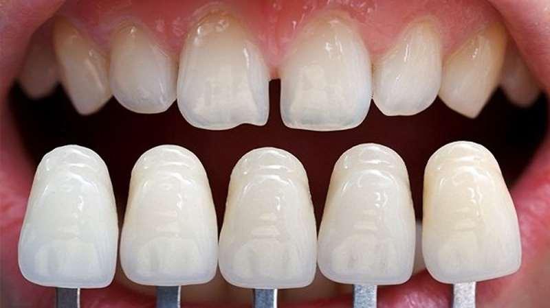 Bọc sứ răng cửa là sử dụng chiếc răng có hình dáng như răng thật để bọc lên chiếc răng cửa bị khiếm khuyết.