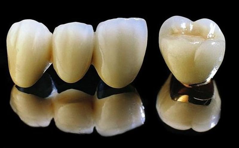 Răng sứ kim loại có chi phí rẻ phù hợp với túi tiền tuy nhiên có thể gây ra kích ứng.