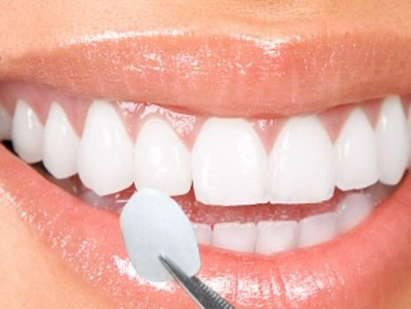 Quy trình bọc sứ răng cửa cần được thực hiện bởi bác sĩ có chuyên môn và tay nghề cao.