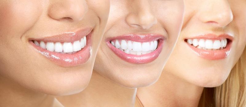 Bọc răng sứ giúp cải thiện nụ cười và vẻ bề ngoài, hỗ trợ cho công việc