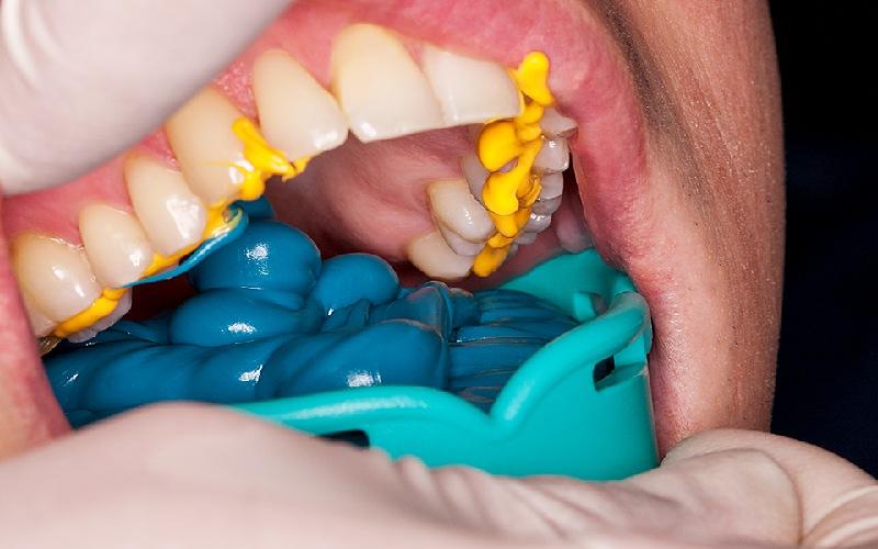 Lấy dấu răng của bạn để chế tạo mão răng sứ sau khi răng thật đã được mài cùi xong
