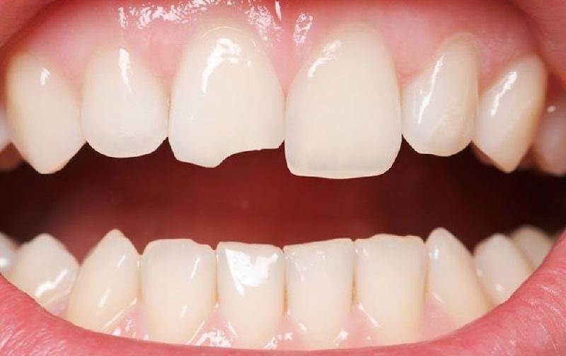 Bọc răng sứ khi răng có các khuyết điểm như sứt, mẻ, gãy,...