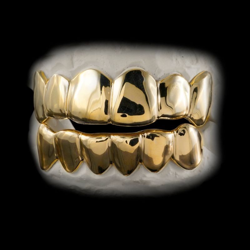 Có nhiều người bọc răng vàng không chỉ để phục hình răng mà còn để tăng thêm cá tính
