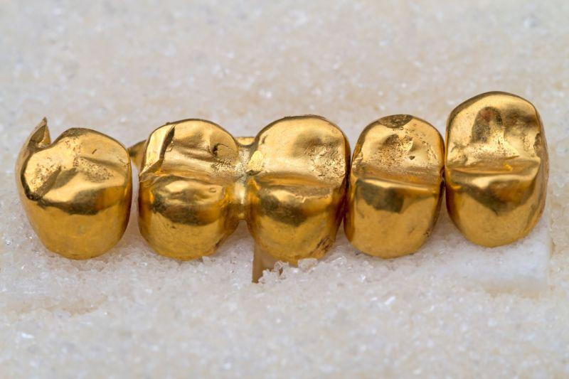 Vàng là kim loại có tính an toàn và bền chắc theo thời gian
