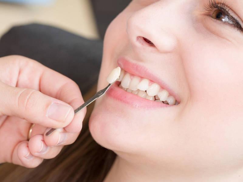 Bọc răng sứ cho răng khểnh sở hữu những ưu điểm vượt trội những cũng có những khuyết điểm cần phải cân nhắc.