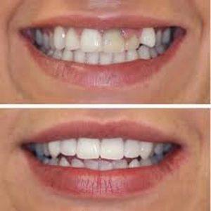 Tìm hiểu quy trình bọc răng sứ cho răng khểnh