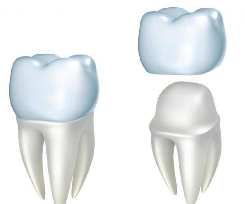 Răng sứ được cố định trên khung hàm