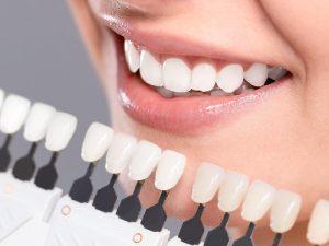 """Có nên bọc răng sứ không? 10 lợi ích """"khủng"""" khi bọc răng sứ"""