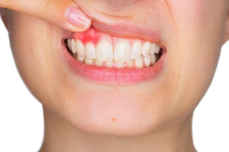 Áp xe hình thành nên những cơn đau buốt vô cùng khó chịu ở răng
