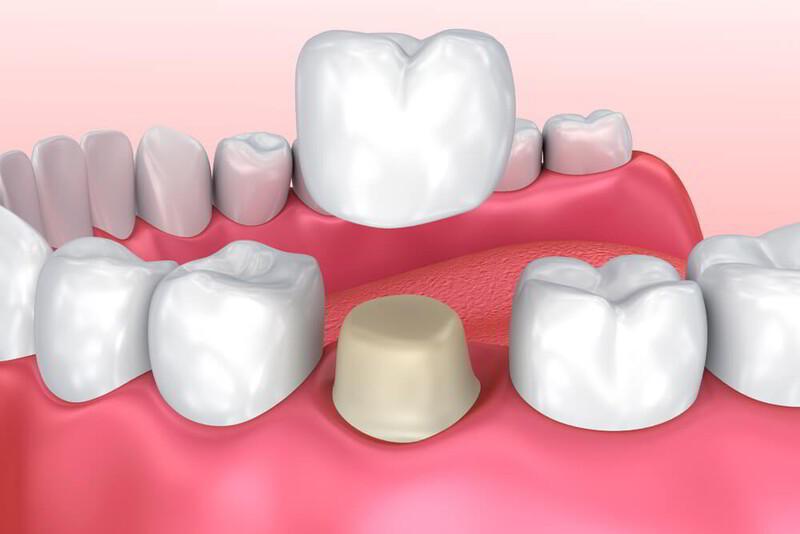Đặt mão răng là phương pháp điều trị các cơn đau phổ biến nhất