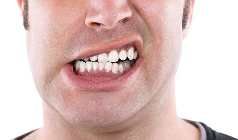 Thói quen nghiến răng sẽ khiến cho phần bảo vệ bên ngoài của răng bị suy yếu