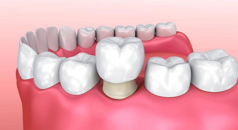Bọc răng sứ mang lại hiệu quả cao trong điều trị răng nhạy cảm