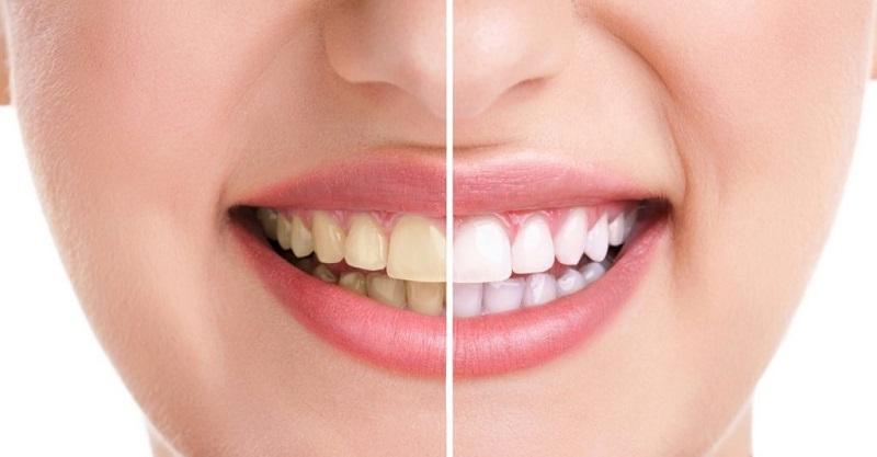 Răng bị ố màu có thể là dấu hiệu men răng yếu đi