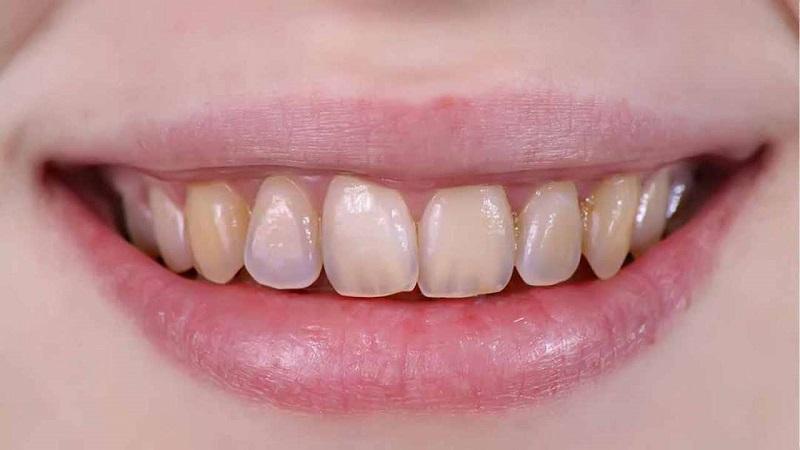 Men răng là một trong 4 mô lớn cấu tạo nên răng