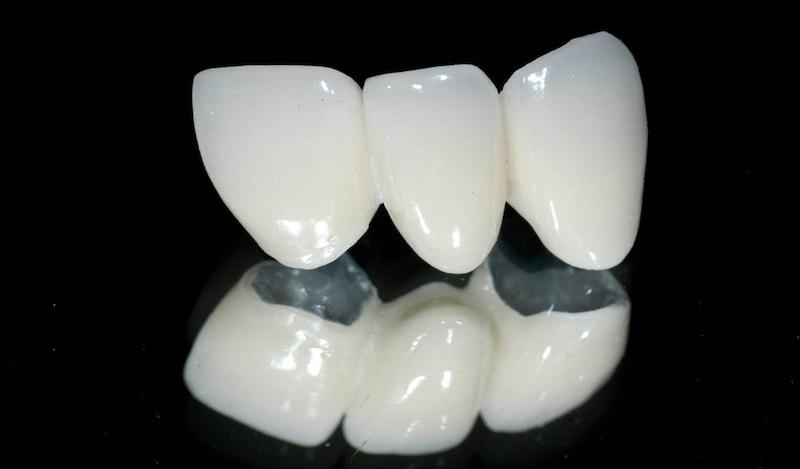 Răng sứ Titan được tạo nên từ hợp kim của titan và phủ một lớp sứ bên ngoài
