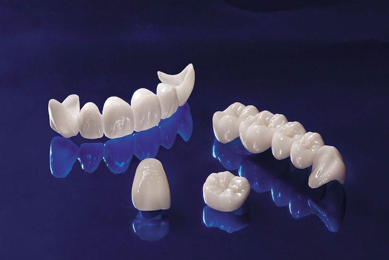 Răng sứ Cercon có màu sắc trắng sáng và có độ trong tự nhiên