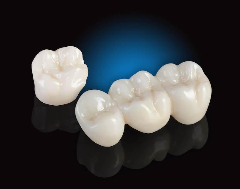 Răng sứ E-Max có điểm mạnh về chất liệu và thời gian sử dụng
