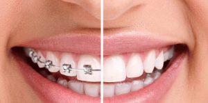 Nên niềng răng hay bọc răng sứ? Đâu là lựa chọn hoàn hảo?