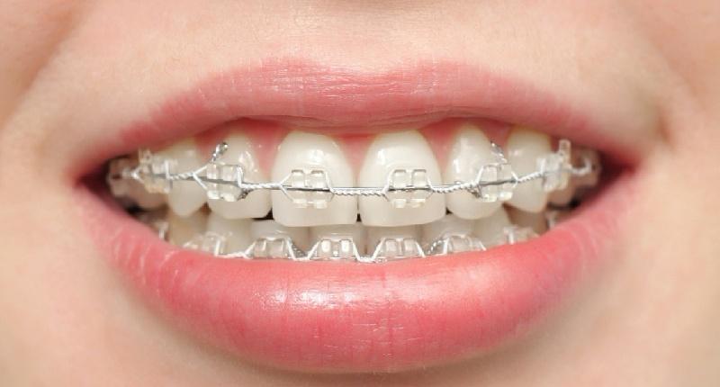 Niềng răng là phương pháp dịch chuyển răng bằng cách dùng các khí cụ nha khoa chuyên dụng