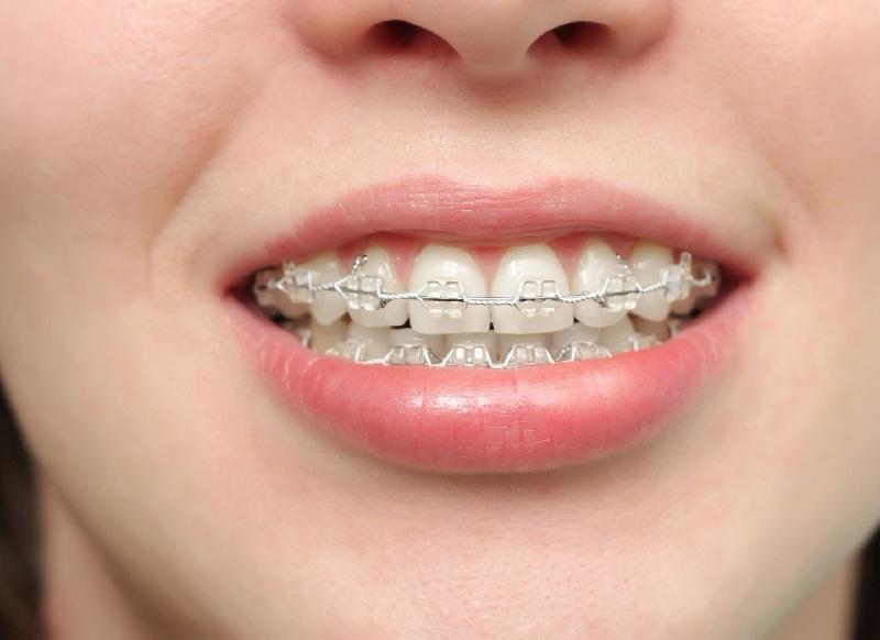 Niềng răng dùng mắc cài bằng sứ để gắn chặt lên bề mặt răng