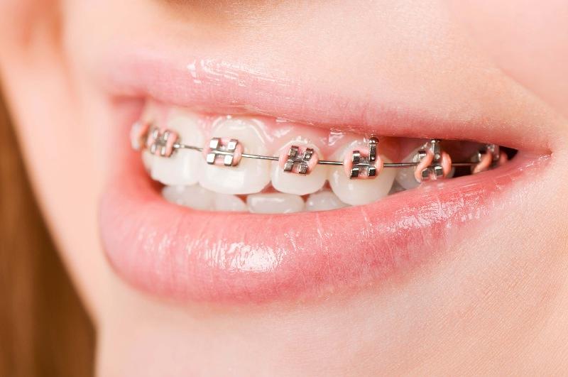 Niềng răng là phương pháp dịch chuyển răng sử dụng khí cụ nha khoa chuyên dụng