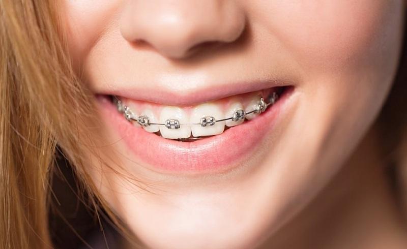 Lứa tuổi lý tưởng nhất cho việc chỉnh nha là trong khoảng 8 - 9 tuổi tới 18 tuổi