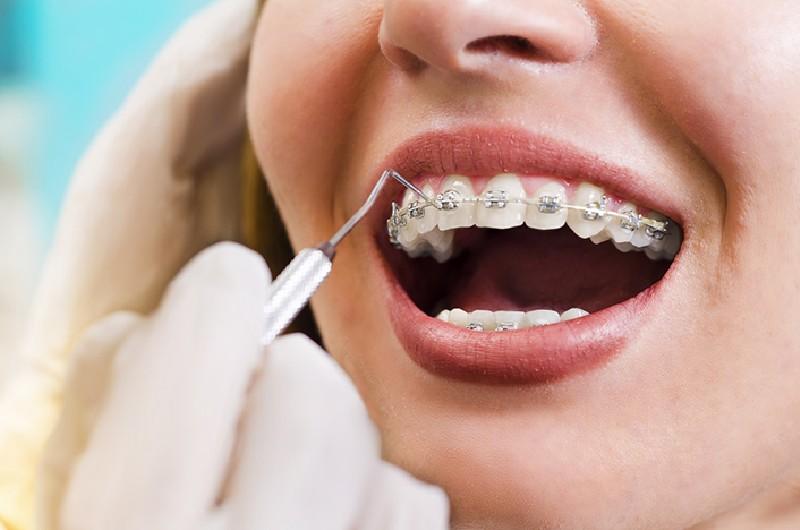 Niềng răng mắc cài inox truyền thống