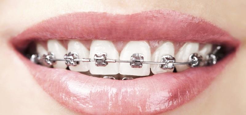 Thời gian chỉnh nha còn phụ thuộc rất lớn vào cấu trúc răng