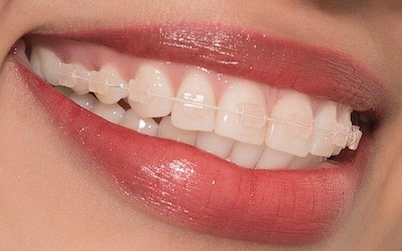 Đóng khoảng là giai đoạn quan trọng nhất trong niềng răng